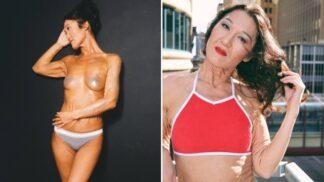 """Američanka (26) prorazila v modelingu navzdory kožnímu onemocnění. """"Každá jsme krásná, všechno je to v naší hlavě,"""" říká"""