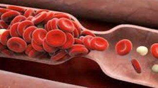Světový den hemofilie: Za léčbu je ročně utraceno 68 miliónů. Jak se toto vzácné genetické onemocnění projevuje?