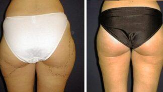 Shoďte kila mávnutím kouzelné hůlky: Liposukce nabízí skvělé výsledky a trvalý efekt