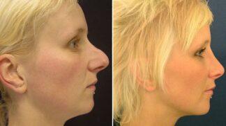 Docent Měšťák: Plastika nosu vám může změnit život, stanete se pro všechny jiným člověkem