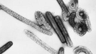 Nejnebezpečnější viry světa, a koronavirus to není: Marburg virus přivezli do Německa omylem s opicemi
