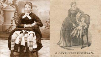 Čtyřnohá matka pěti dětí měla od pasu dolů všechno zdvojené. Stala se hvězdou cirkusu