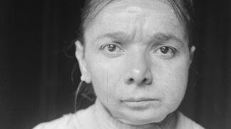 Temná historie výroby zápalek: Děvčatům z továren hnily tváře zaživa