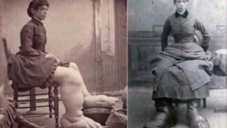 Žena s největšími chodidly na světě – Fannie Millsová – nosila místo ponožek povlaky na polštáře # Thumbnail
