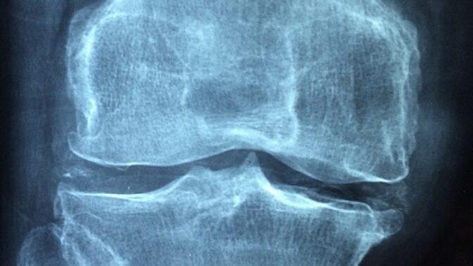 Osteoporóza: Počet nemocných roste! Kde je největší chyba?