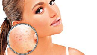 Varovné signály: Co prozradí pokožka o vašem zdraví? # Thumbnail