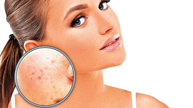 Varovné signály: Co prozradí pokožka o vašem zdraví?