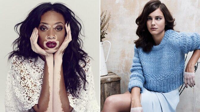 10 podmanivých žen, které dokazují, že krása nezná hranic